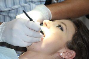 Comment choisir le bon prestataire pour le traitement d'implant dentaire